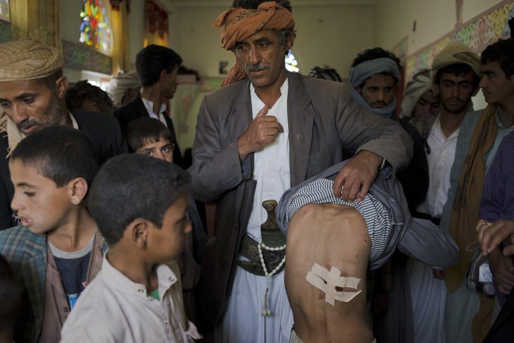 in Al Joob Village, Amran Governorate, Yemen on July 7, 2015.