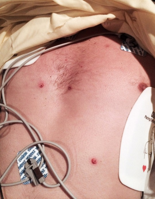 Bryce-Chest-Taser-Marks1