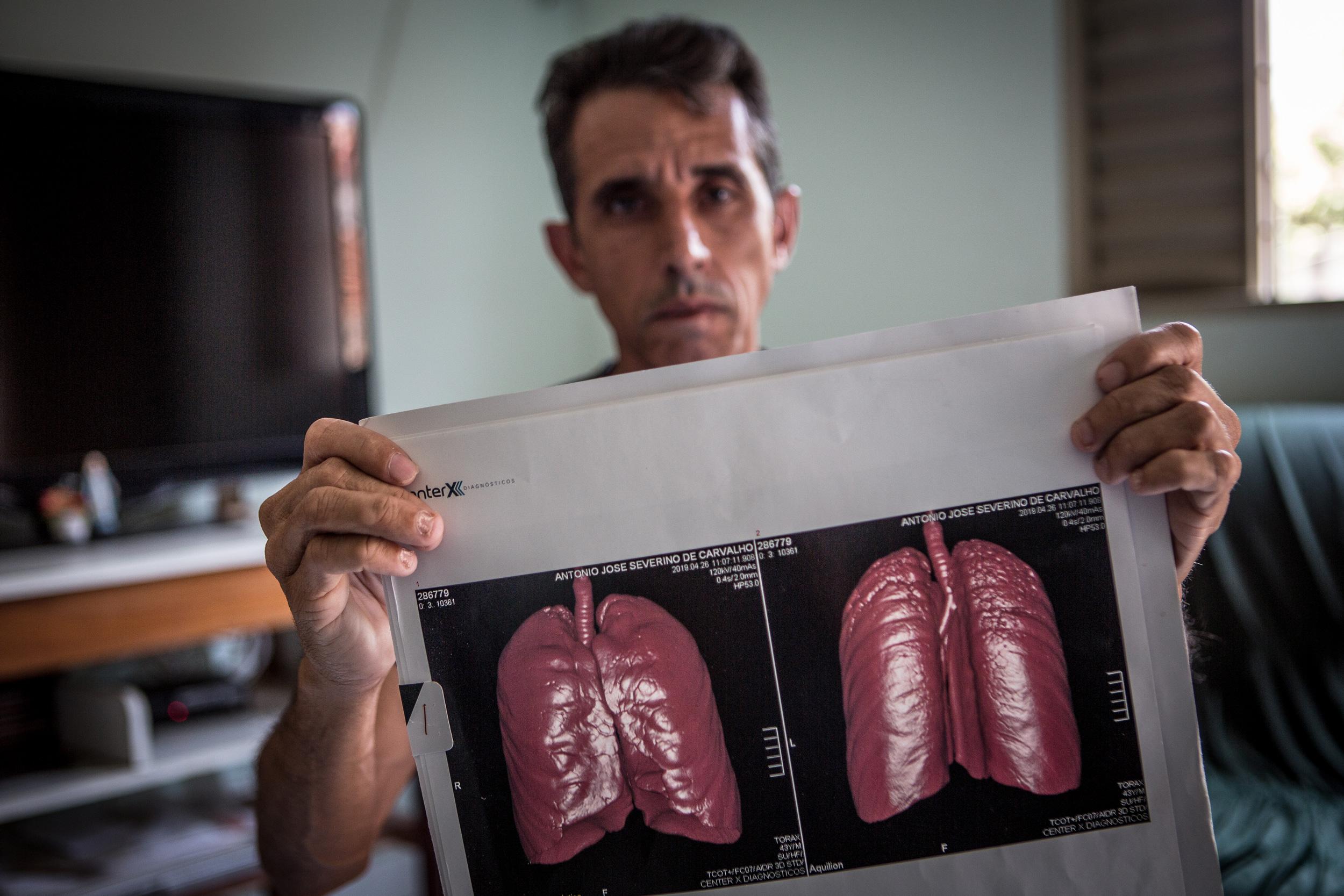 Antonio José Severino de Carvalho, de 44 anos, ex funcionário da mineradora Sama, mostra seus exames mostrando resultados da abestose em seus pulmões. Antonio trabalhou na Sama por 11 anos e 8 meses.